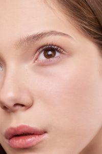 acne e punti neri